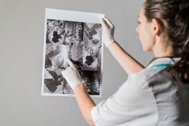 Medico della donna che controlla i raggi x dell'intestino della persona del dolichocolon. foto di alta qualità