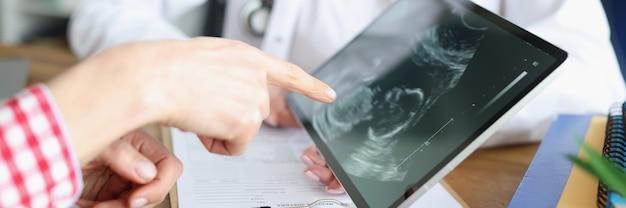 Medico della donna che mostra compressa digitale con l'immagine di ultrasuono del feto in primo piano della clinica
