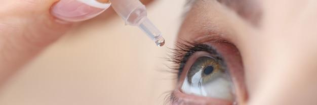La donna gocciola colliri nei suoi occhi malattie degli occhi e il loro concetto di trattamento