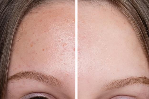 Fronte della donna prima e dopo la procedura cosmetica per la pulizia del viso.