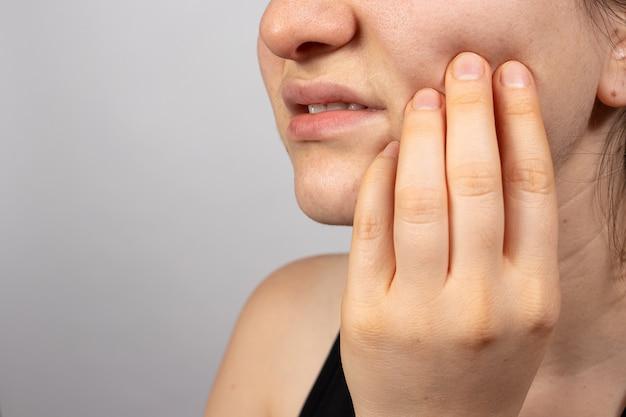 Una donna si tiene la guancia con un dente dolorante con la mano.