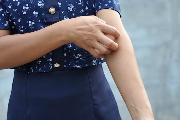 Donna che graffia il braccio dal prurito su sfondo grigio chiaro la causa del prurito della pelle include punture di insetti