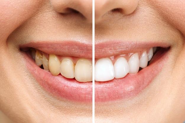 Denti della donna prima e dopo lo sbiancamento su sfondo bianco immagine paziente clinica dentale simboleggia