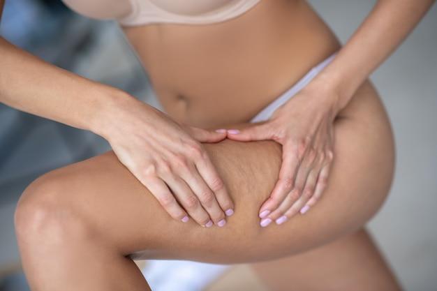 Donna in biancheria intima che mostra la sua cellulite