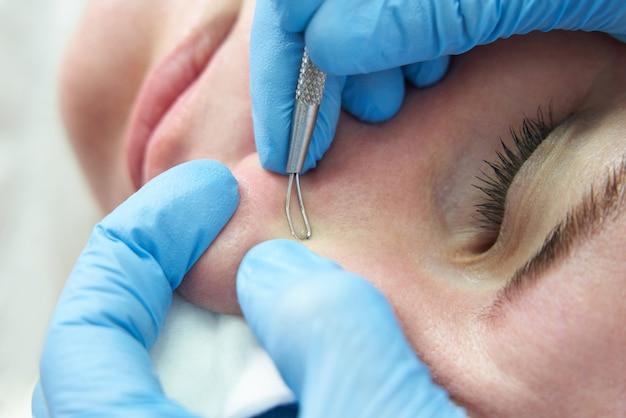 La donna usa il bastoncino per la rimozione dell'acne per rimuovere i brufoli sul viso schiacciando i brufoli sulla protuberanza oleosa
