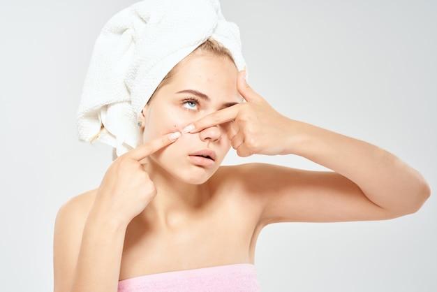 Donna con l'acne delle spalle nude sull'ematologia del primo piano di salute del viso