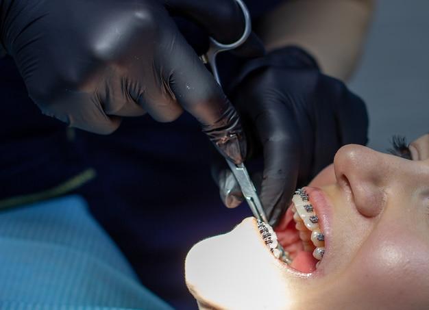 La donna con le parentesi graffe visita un ortodontista, in una sedia dentale.durante la procedura di installazione dell'arco di parentesi graffe sui denti superiori e inferiori.il dentista indossa guanti e ha strumenti nelle sue mani.