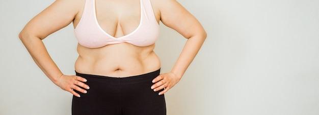 Donna con addome grasso, stomaco femminile in sovrappeso, smagliature sul primo piano della pancia