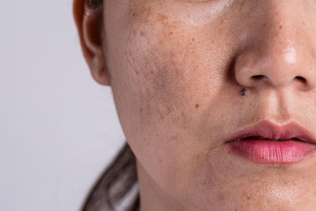 Donna con pelle problematica e cicatrici da acne. problema concetto di cura della pelle.