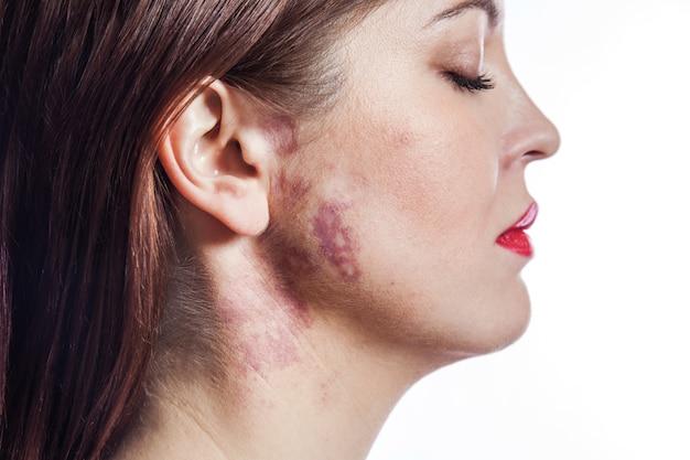 Donna con una voglia di vera macchia di vino porto sul viso