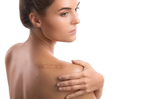 Donna con una cicatrice sulla spalla