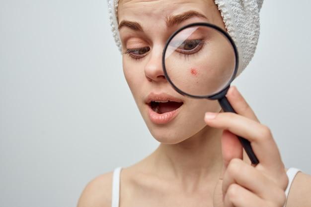 La donna con un asciugamano in testa tiene una lente d'ingrandimento vicino al brufolo di problemi di pelle del viso
