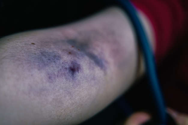 Il braccio della donna è contuso dall'assunzione di stupefacenti per via endovenosa, il tossicodipendente tira il laccio emostatico sul braccio grande blo...