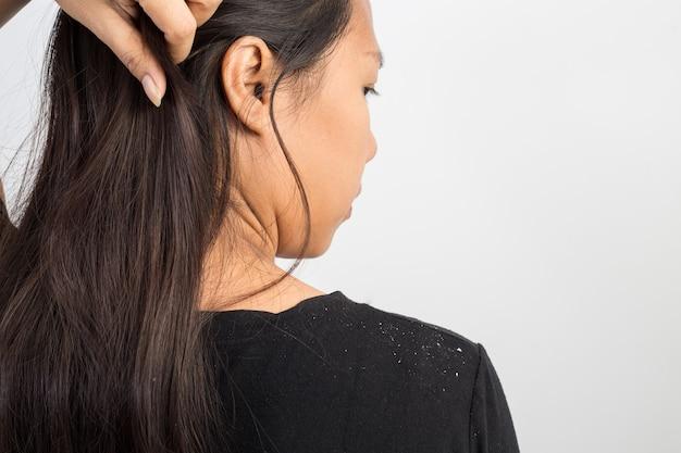 Donne che hanno la forfora nei capelli e nelle spalle