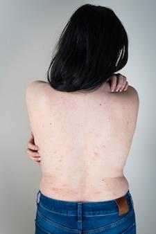 Donne con sintomi di orticaria pruriginosa o reazione allergica sulla pelle