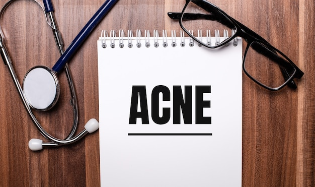 La parola acne è scritta su carta bianca su una superficie di legno vicino a uno stetoscopio e occhiali con cornice nera