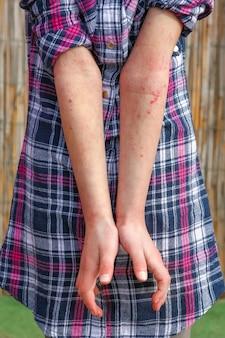 Una dermatite atopica ferita nelle mani di un bambino
