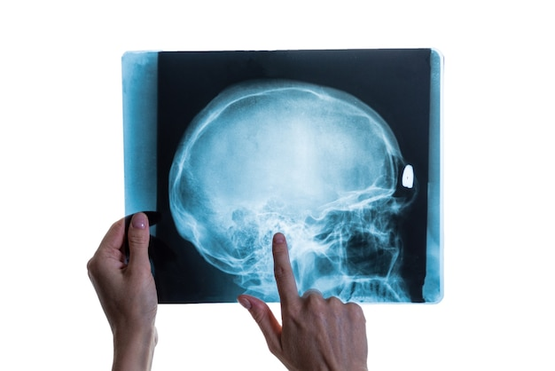 Analisi a raggi x dell'immagine del cranio della testa nelle mani di uno specialista, primo piano