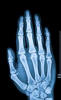 Fluoroscopia a raggi x delle dita umane
