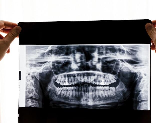 Radiografia di una serie completa di denti. concetto di raggi x.