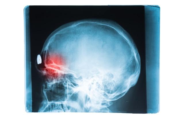 Immagine a raggi x della testa e del cranio cerebrale con punto di dolore rosso nei seni frontali, concetto di simorite