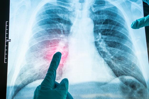 Immagine a raggi x del torace umano per una diagnosi medica. coronavirus (covid-19. sindrome respiratoria del virus epidemico 2019-ncov.