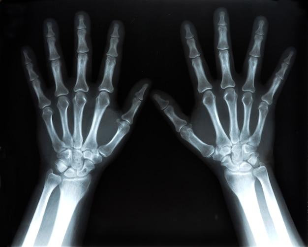 Immagine a raggi x di mani umane