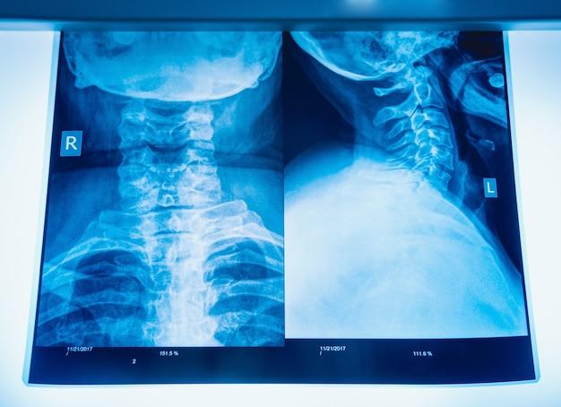 Immagine a raggi x del collo umano per una diagnosi medica.