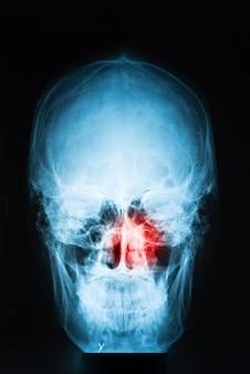 Immagine a raggi x del cranio con punto di dolore rosso nei seni, concetto di sinusite, verticale, primo piano