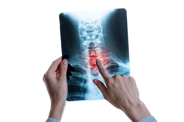 Immagine a raggi x della colonna vertebrale con punto di dolore rosso nella colonna vertebrale cervicale nelle mani dello specialista