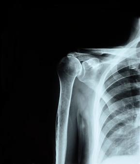 Radiografia dell'articolazione della spalla