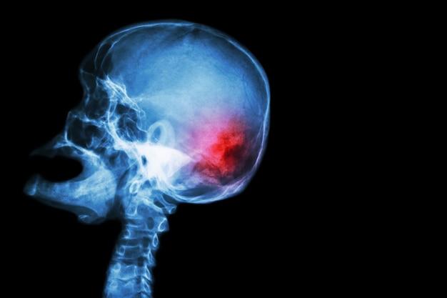 Cranio a raggi x a bocca aperta (vista laterale) e ictus (incidente cerebrovascolare (cva))
