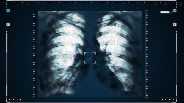 Raggi x dei polmoni umani o terapia fisica per medici con problemi polmonari come virus che entrano nei polmoni. complicazioni dopo polmonite, covid - 19, tubercolosi o fumo.