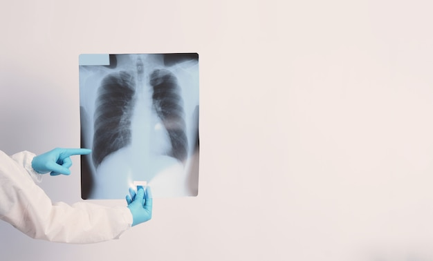 Pellicola a raggi x del danno polmonare di covid 19 e tenuta per mano del medico in guanti medici e dpi o personali