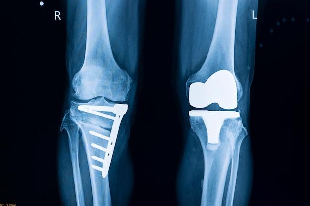 Pellicola radiografica di un paziente dopo sostituzione totale del ginocchio sinistro
