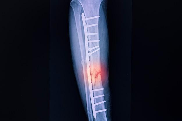 Ditta radiografica di un paziente con frattura della tibia destra dopo fissazione chirurgica con placche metalliche