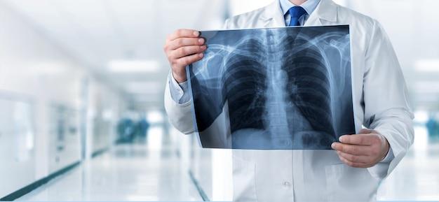 Raggi x radiologia medico ospedale malattia radiografia ray