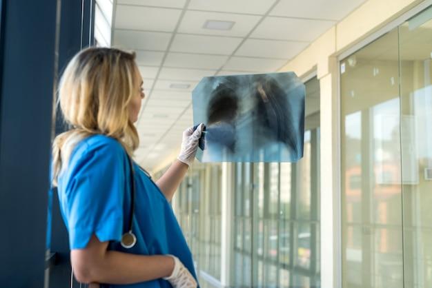 Giovane medico femminile biondo che porta l'uniforme blu con lo stetoscopio che tiene la pellicola dei raggi x del torace e che controlla sulla polmonite covid19