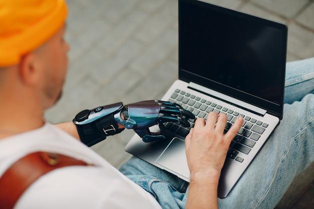 Giovane uomo disabile con mano protesica artificiale utilizzando la digitazione sulla tastiera del computer portatile.
