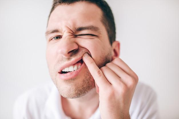 Giovane uomo isolato su un muro bianco. chiuda sul ritratto del ragazzo irritato che osserva sulla macchina fotografica e che tiene il labbro superiore con un dito. soffre di mal di denti e dolori.