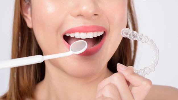 Giovane donna sorridente che tiene bretelle invisalign in studio, assistenza sanitaria dentale e concetto ortodontico