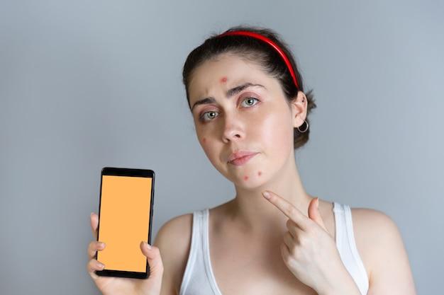 Una giovane donna sconvolta tiene in mano uno smartphone e punta il dito sui brufoli sul viso. il concetto di cosmetologia e controllo dell'acne, l'adolescenza. copia spazio e simula.
