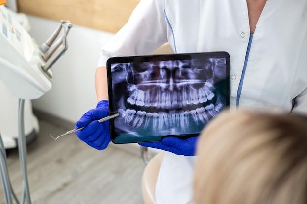 Giovane donna alla consultazione del dentista. controllo e cure odontoiatriche in una clinica odontoiatrica. igiene orale e trattamento.