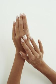 La giovane donna distribuisce la crema per le mani sulle sue mani. il concetto di idratazione della pelle, cura delle mani e prevenzione delle rughe.