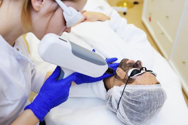 Una giovane donna sulla procedura di desquamazione del carbonio sulla superficie della moderna sala di cosmetologia. cosmetologia laser