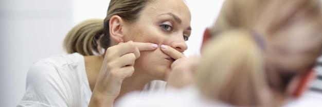 La giovane donna sta davanti allo specchio e preme i brufoli con il ritratto delle mani. cura della pelle del viso pulizia a casa concetto