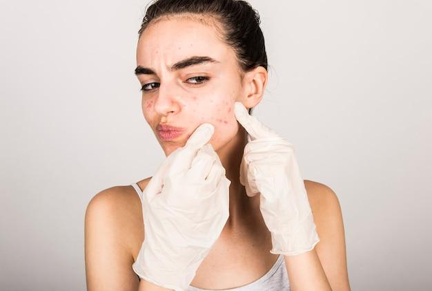 Giovane donna con acne sulla pelle del viso