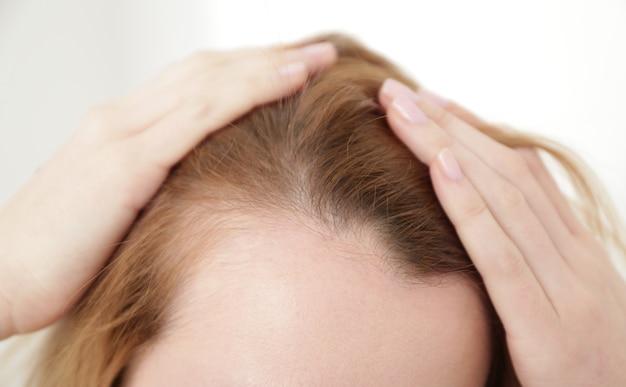 Giovane donna con problemi di perdita di capelli su sfondo chiaro, primo piano