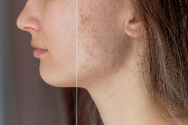 Il viso di una giovane donna prima e dopo il trattamento dell'acne sul viso brufoli cicatrici rosse eruzioni cutanee sulle guance