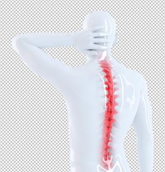 Illustrazione anatomica del concetto di dolore alla schiena